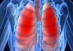 Patienten met Astma