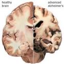 Alzheimer brein